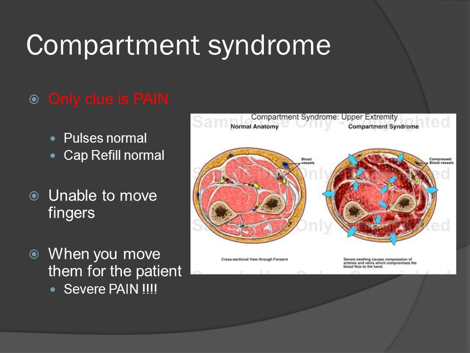 Compartment syndrome Only clue is PAIN Unable to move fingers