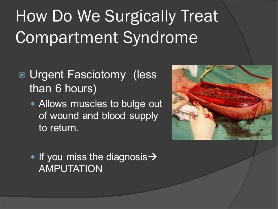 How Do We Surgically Treat Compartment Syndrome