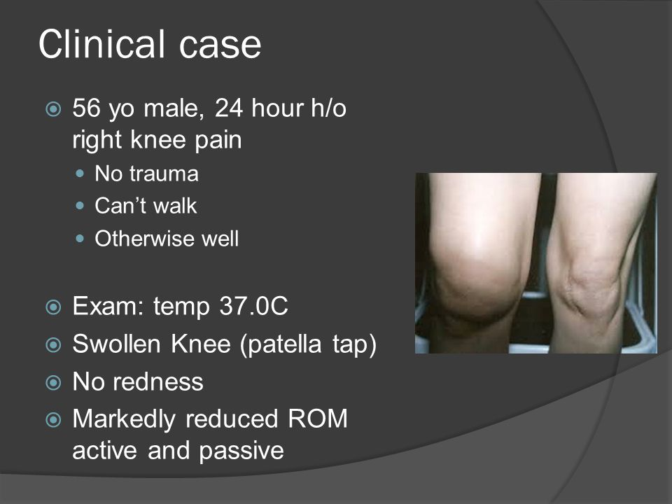 Clinical case 56 yo male, 24 hour h/o right knee pain Exam: temp 37.0C