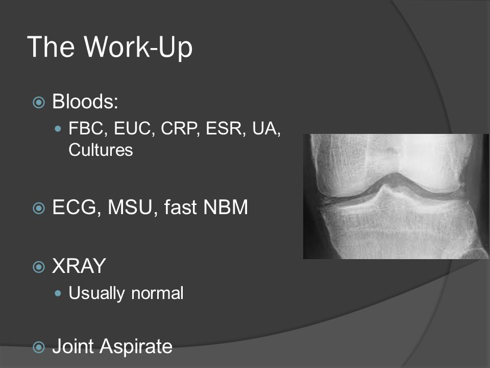 The Work-Up Bloods: ECG, MSU, fast NBM XRAY Joint Aspirate