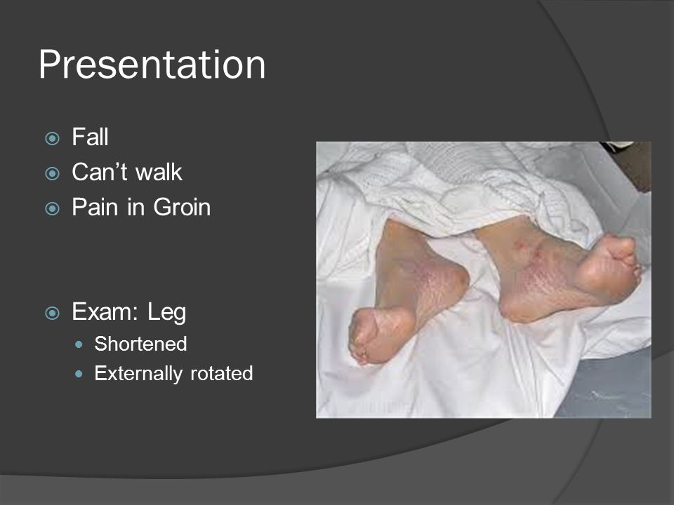 Presentation Fall Can't walk Pain in Groin Exam: Leg Shortened