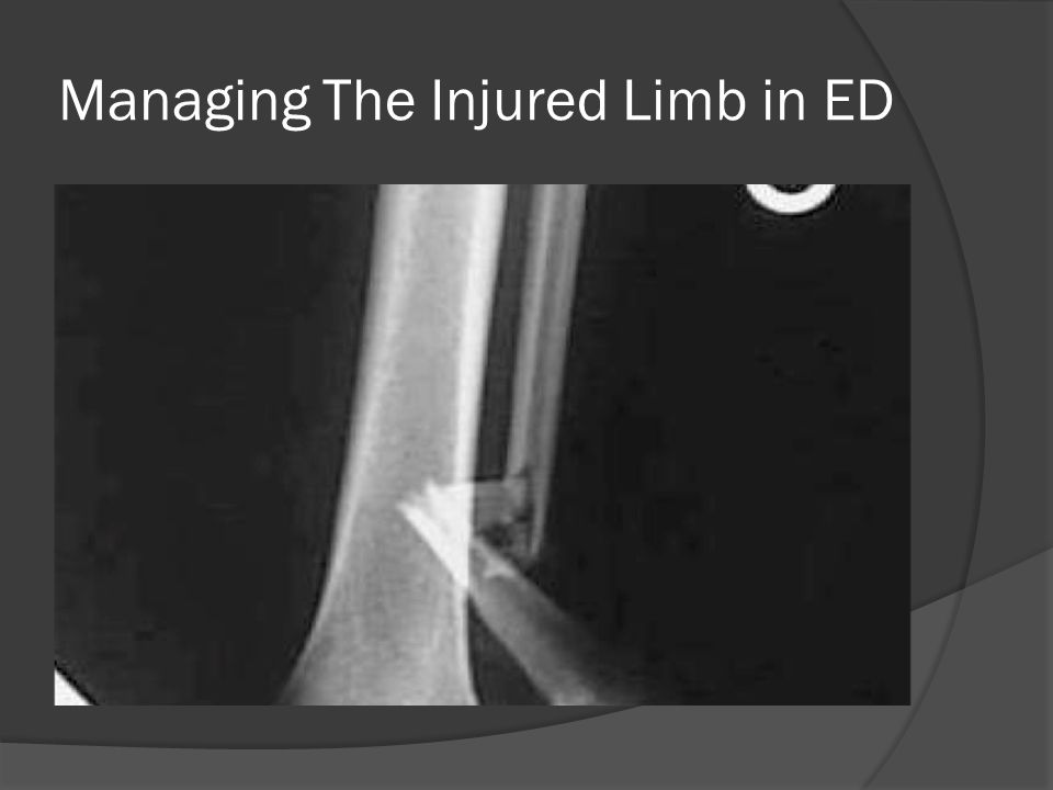 Managing The Injured Limb in ED