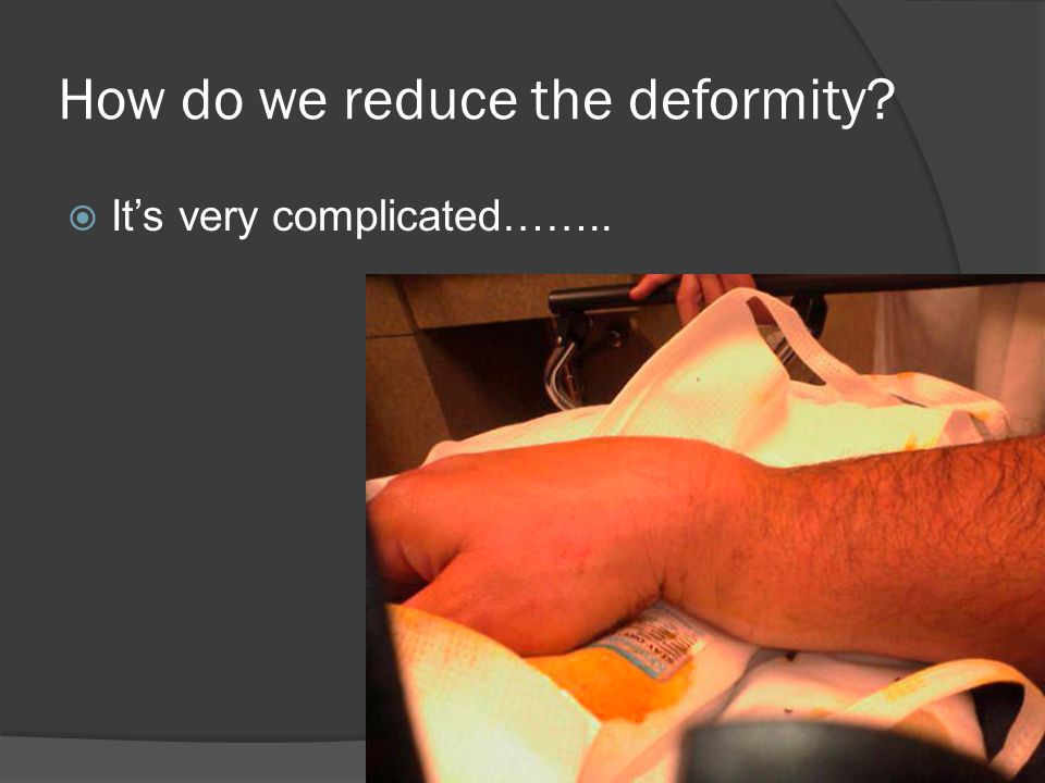 How do we reduce the deformity