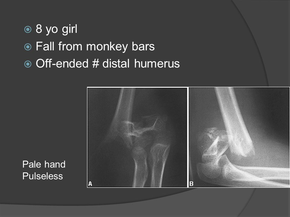 Off-ended # distal humerus