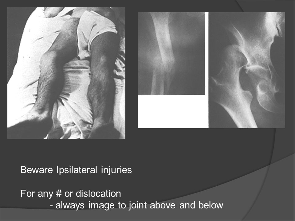 Beware Ipsilateral injuries