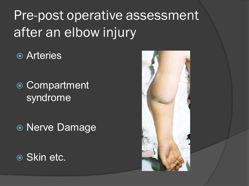 Pre-post operative assessment after an elbow injury