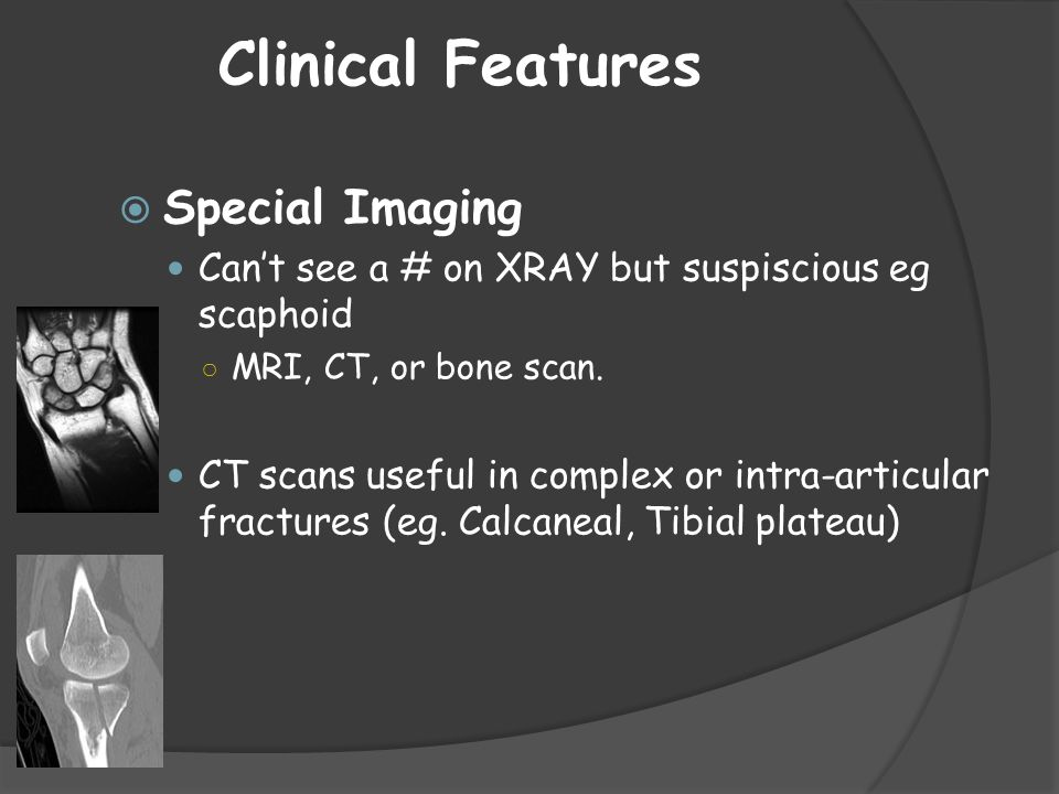 Clinical Features Special Imaging