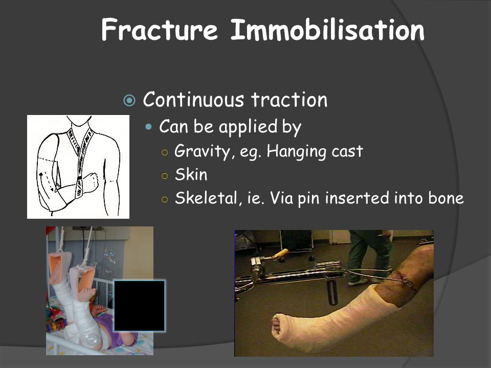 Fracture Immobilisation
