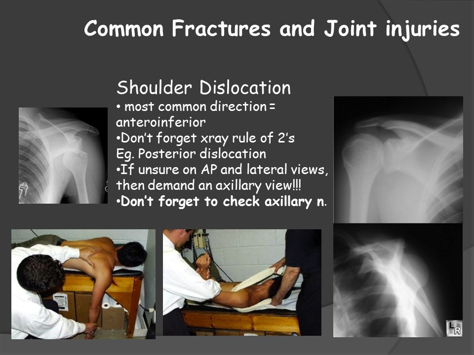 Common Fractures and Joint injuries
