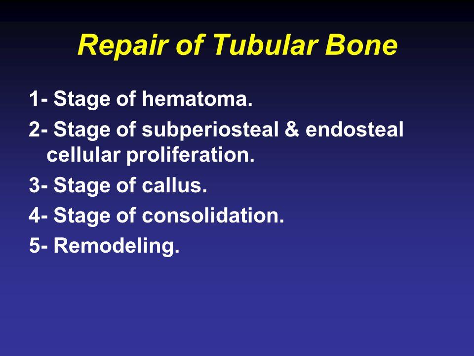 Repair of Tubular Bone 1- Stage of hematoma.