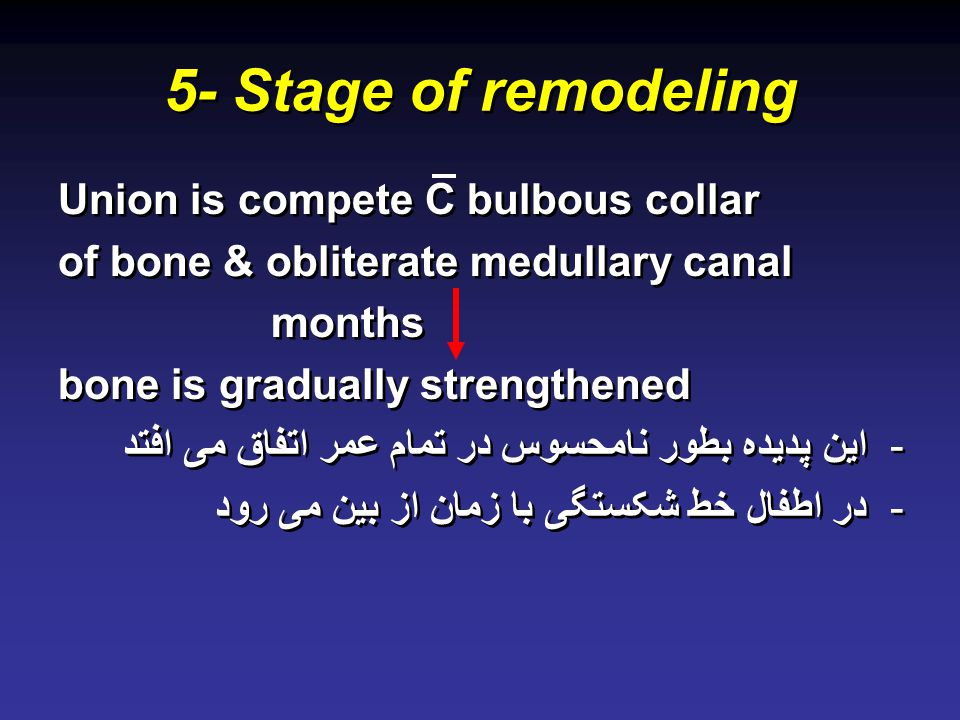 5- Stage of remodeling Union is compete C bulbous collar