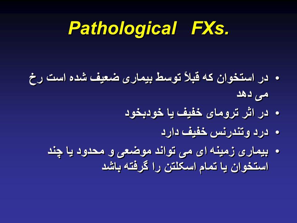 Pathological FXs. در استخوان که قبلاً توسط بیماری ضعیف شده است رخ می دهد. در اثر ترومای خفیف یا خودبخود.