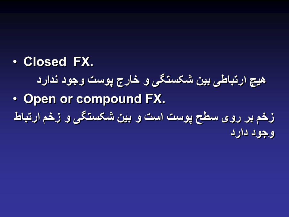 Closed FX. هیچ ارتباطی بین شکستگی و خارج پوست وجود ندارد.