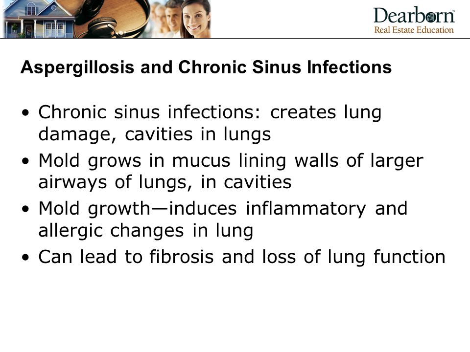 Aspergillosis and Chronic Sinus Infections