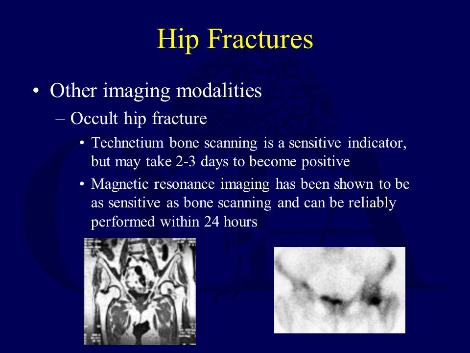Hip Fractures Other imaging modalities Occult hip fracture