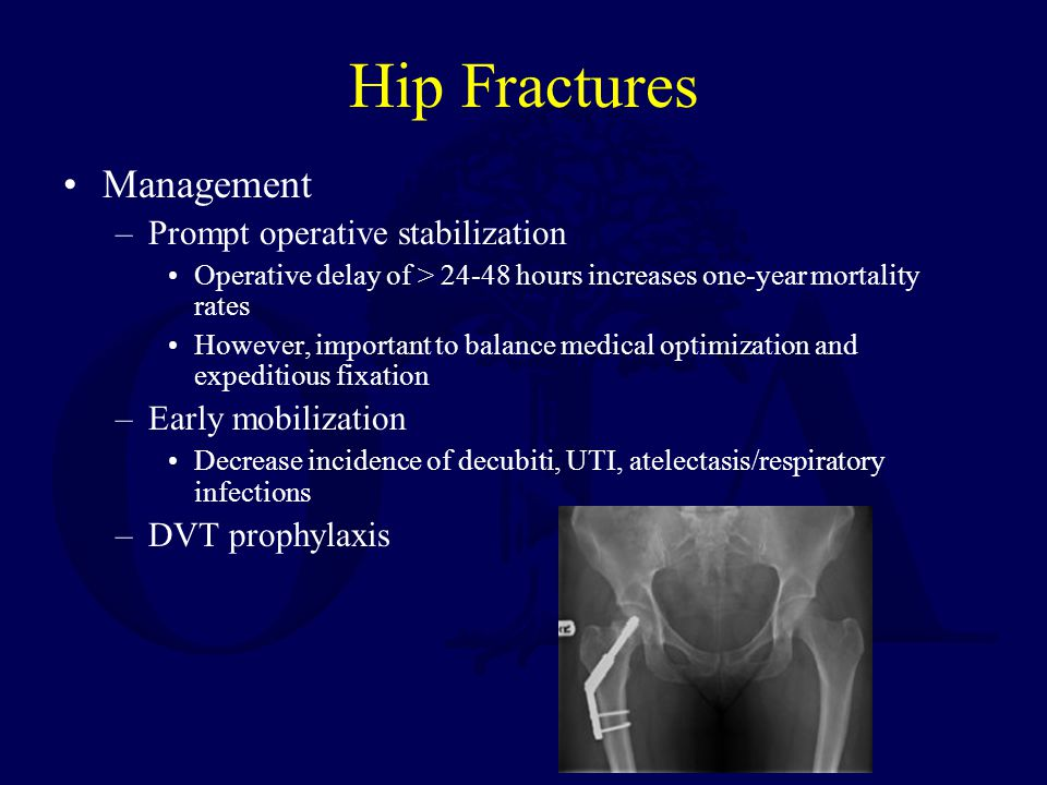 Hip Fractures Management Prompt operative stabilization
