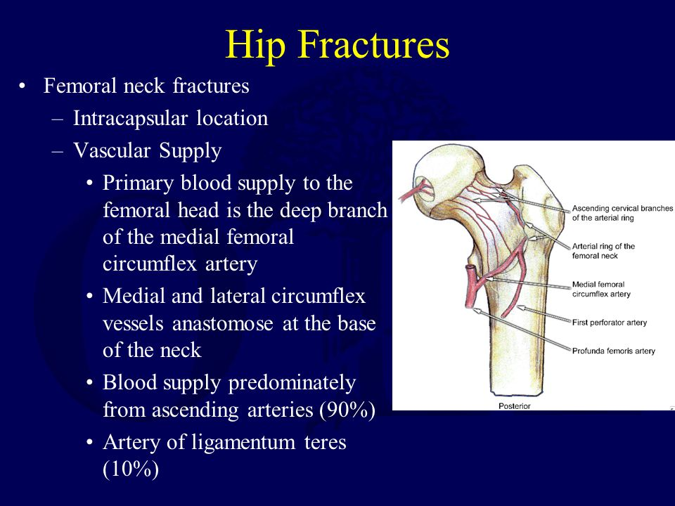 Hip Fractures Femoral neck fractures Intracapsular location