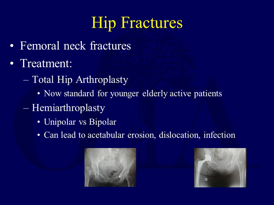 Hip Fractures Femoral neck fractures Treatment: Total Hip Arthroplasty
