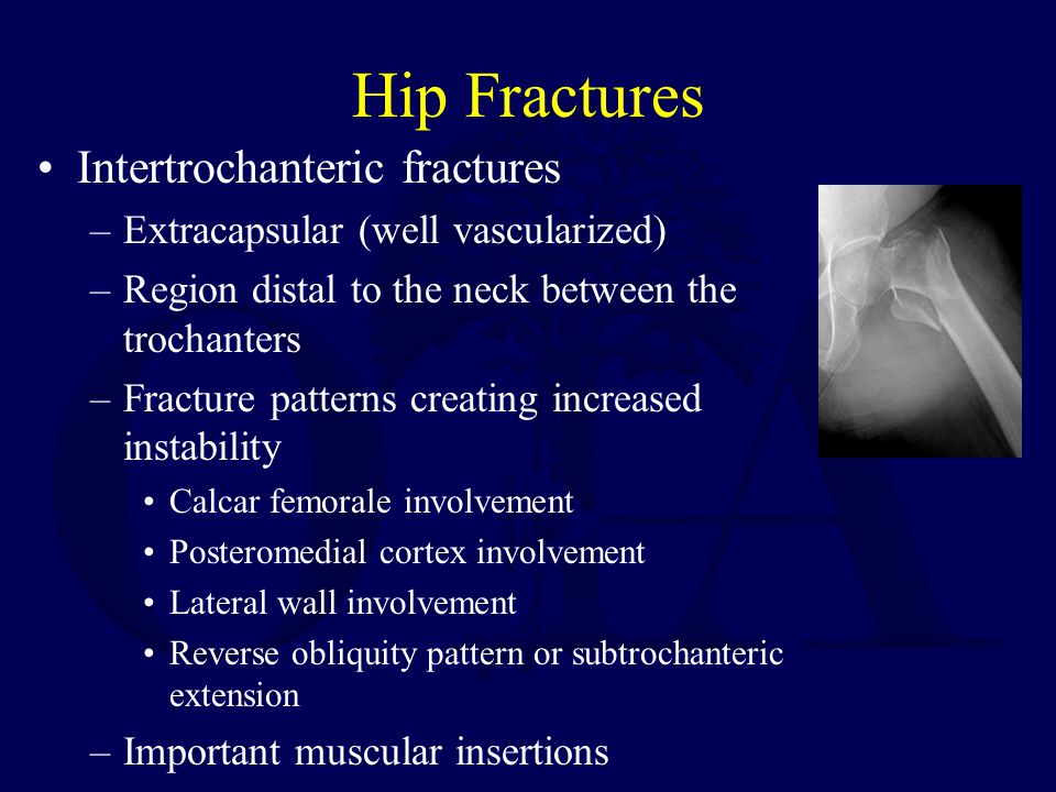 Hip Fractures Intertrochanteric fractures