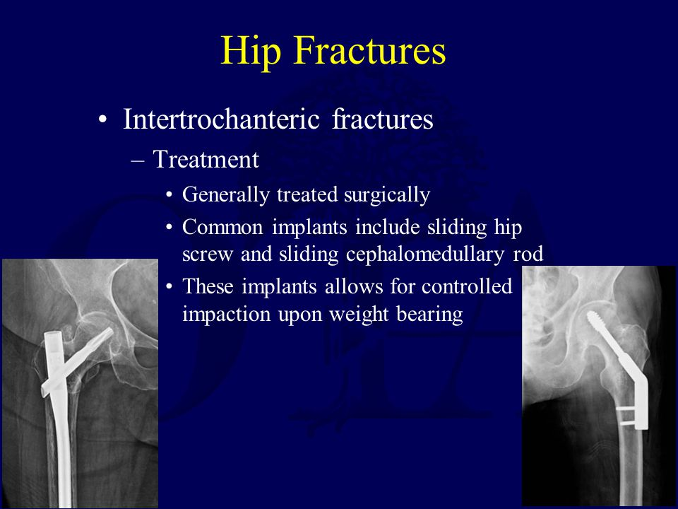 Hip Fractures Intertrochanteric fractures Treatment