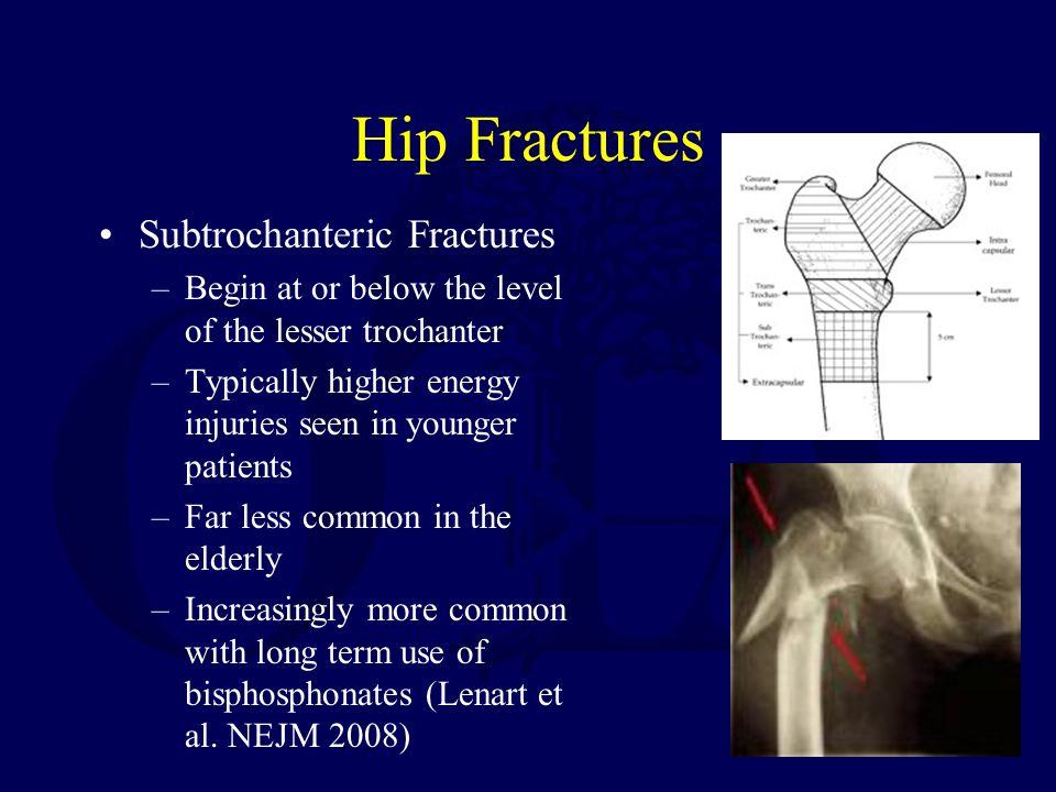 Hip Fractures Subtrochanteric Fractures