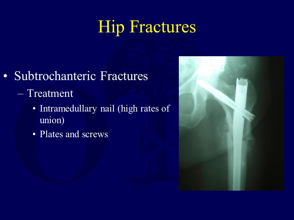 Hip Fractures Subtrochanteric Fractures Treatment