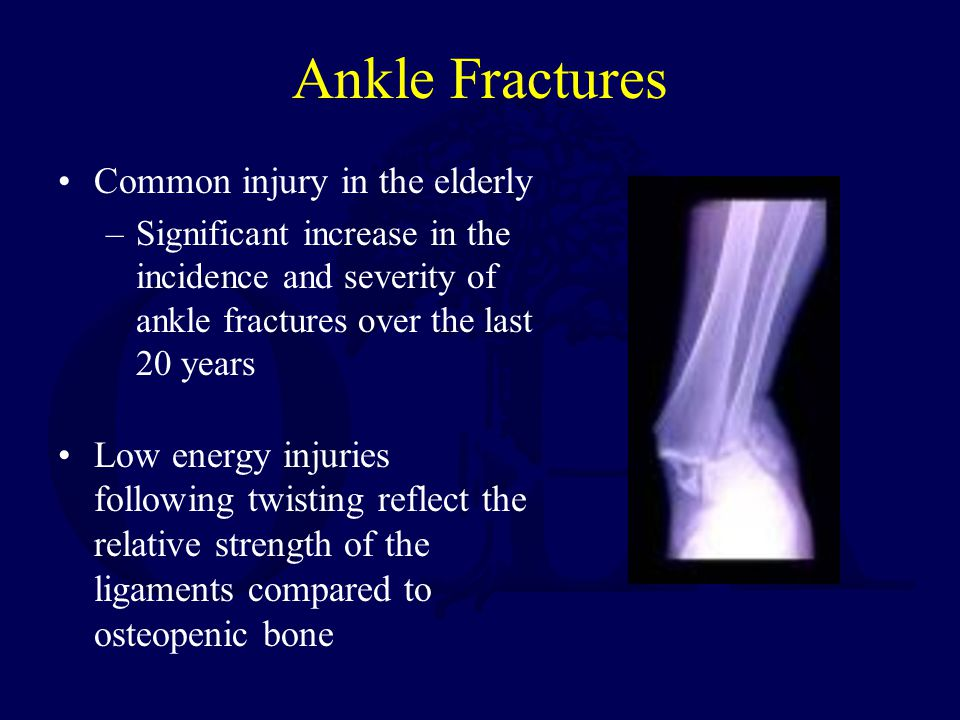Ankle Fractures Common injury in the elderly