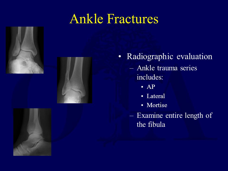 Ankle Fractures Radiographic evaluation Ankle trauma series includes: