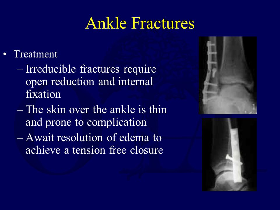 Ankle Fractures Treatment. Irreducible fractures require open reduction and internal fixation.