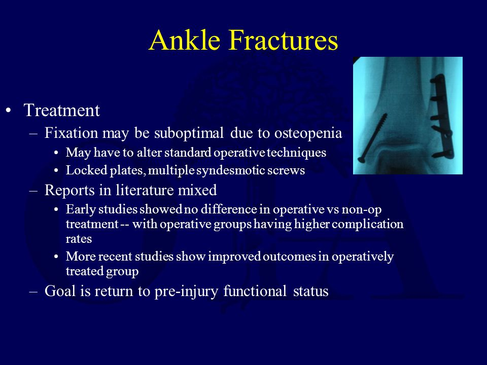 Ankle Fractures Treatment Fixation may be suboptimal due to osteopenia
