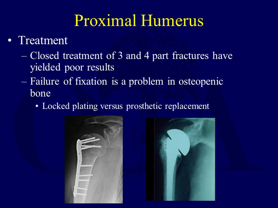 Proximal Humerus Treatment