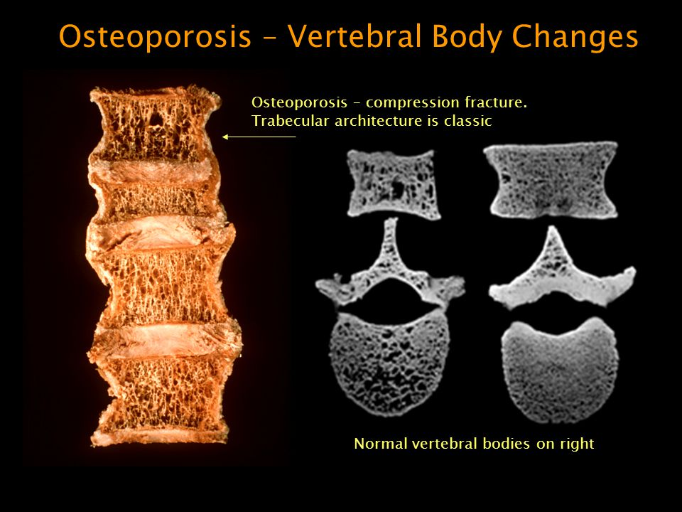 Osteoporosis. - ppt video online download