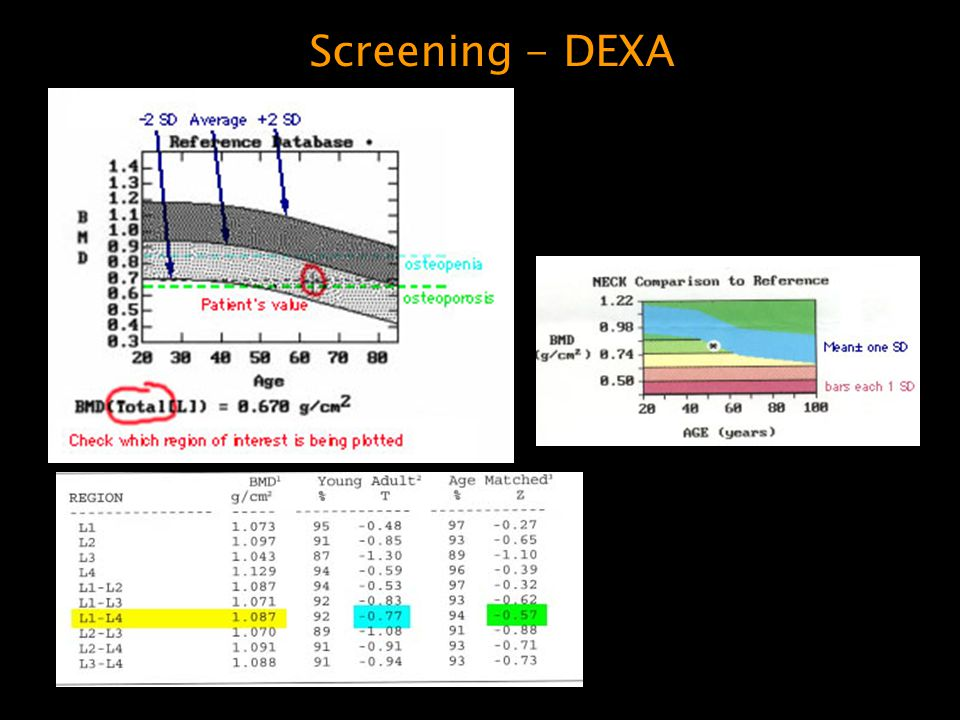 Screening - DEXA