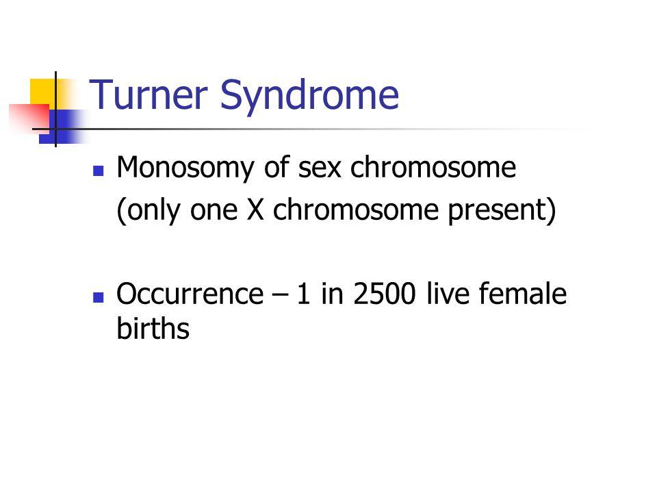 Turner Syndrome Monosomy of sex chromosome