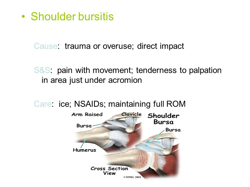 Shoulder bursitis Cause: trauma or overuse; direct impact