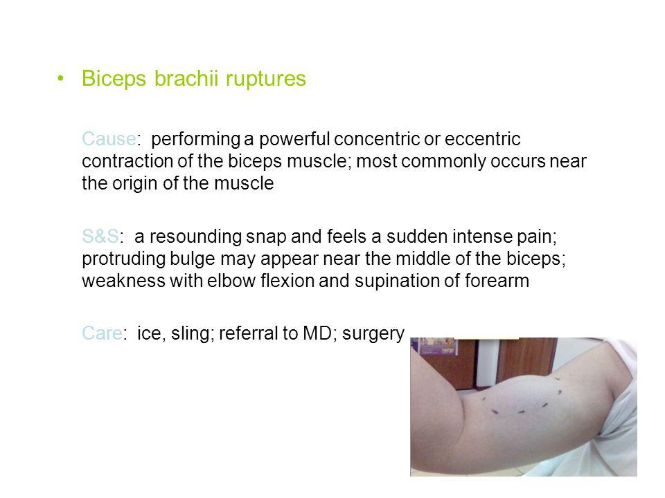 Biceps brachii ruptures