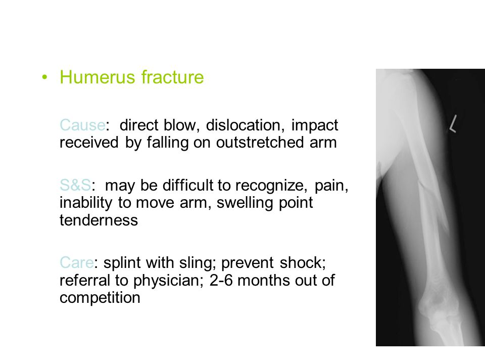 Humerus fracture Cause: direct blow, dislocation, impact received by falling on outstretched arm.
