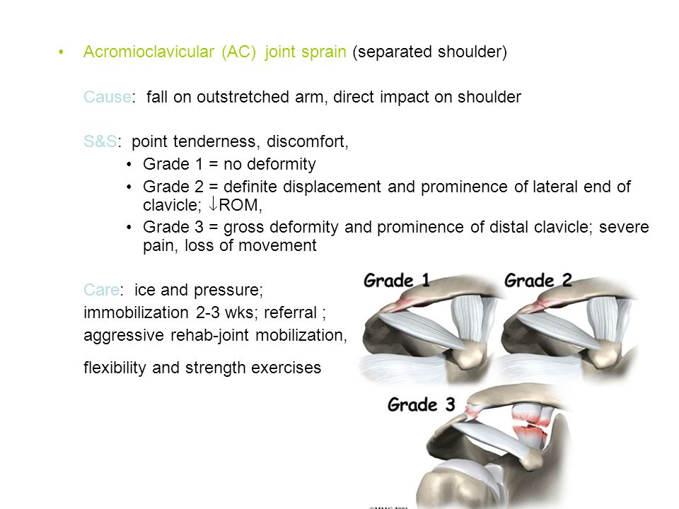 Acromioclavicular (AC) joint sprain (separated shoulder)