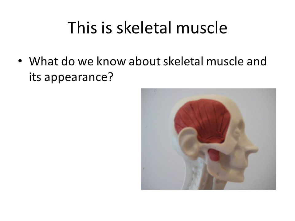 This is skeletal muscle