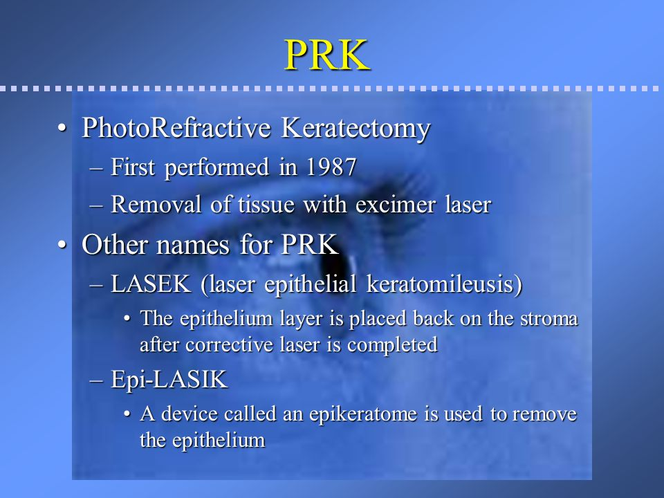 PRK PhotoRefractive Keratectomy Other names for PRK
