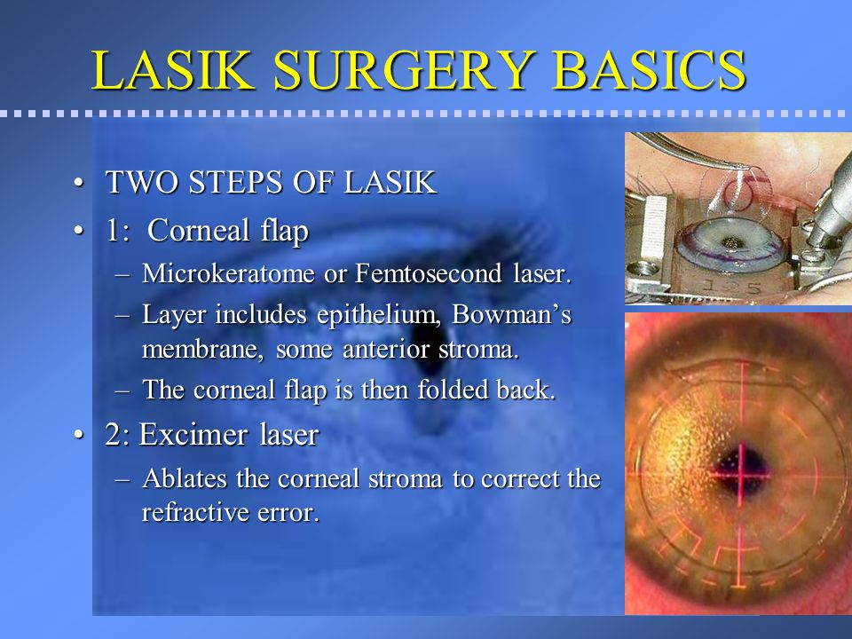 LASIK SURGERY BASICS TWO STEPS OF LASIK 1: Corneal flap