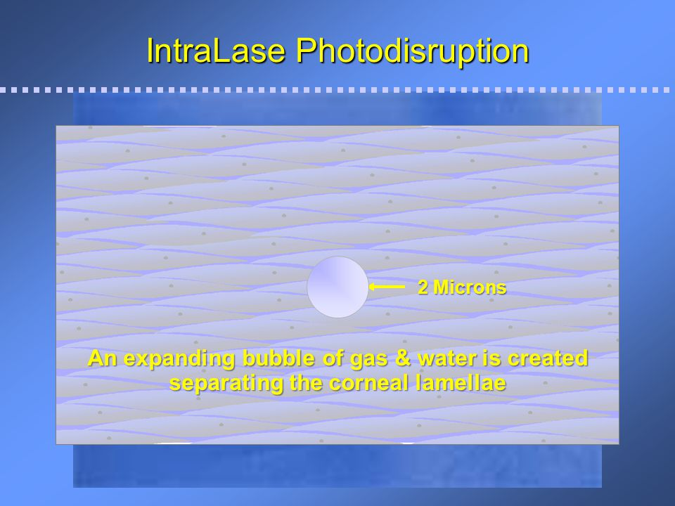 IntraLase Photodisruption