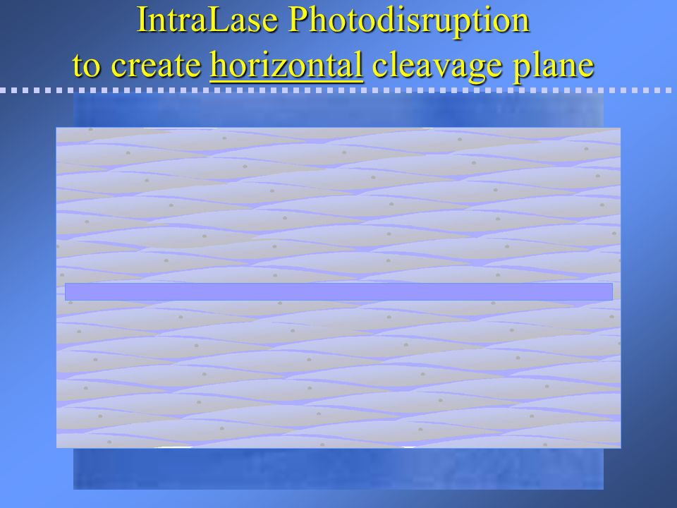 IntraLase Photodisruption to create horizontal cleavage plane