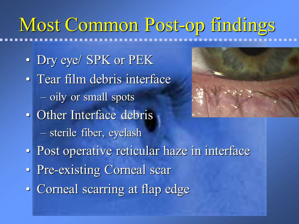 Most Common Post-op findings