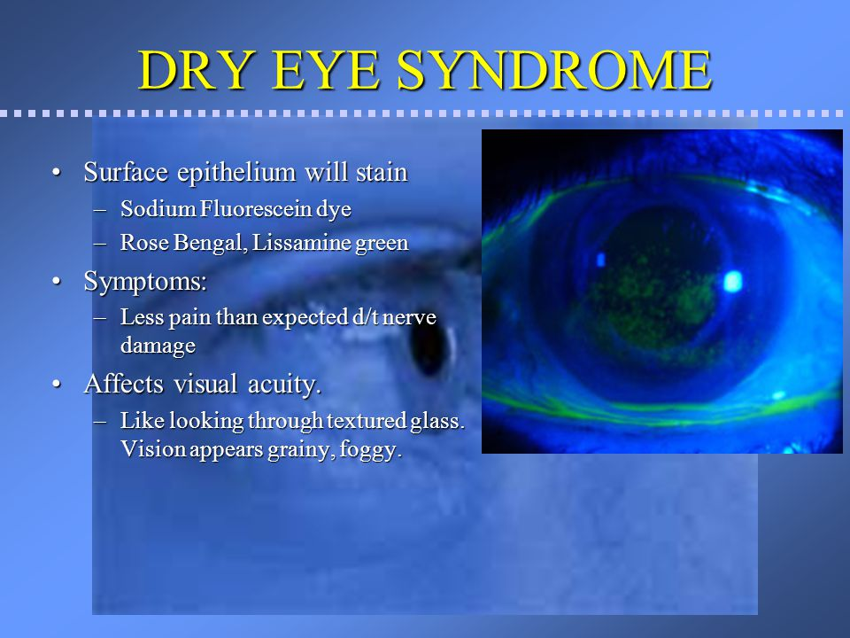 DRY EYE SYNDROME Surface epithelium will stain Symptoms: