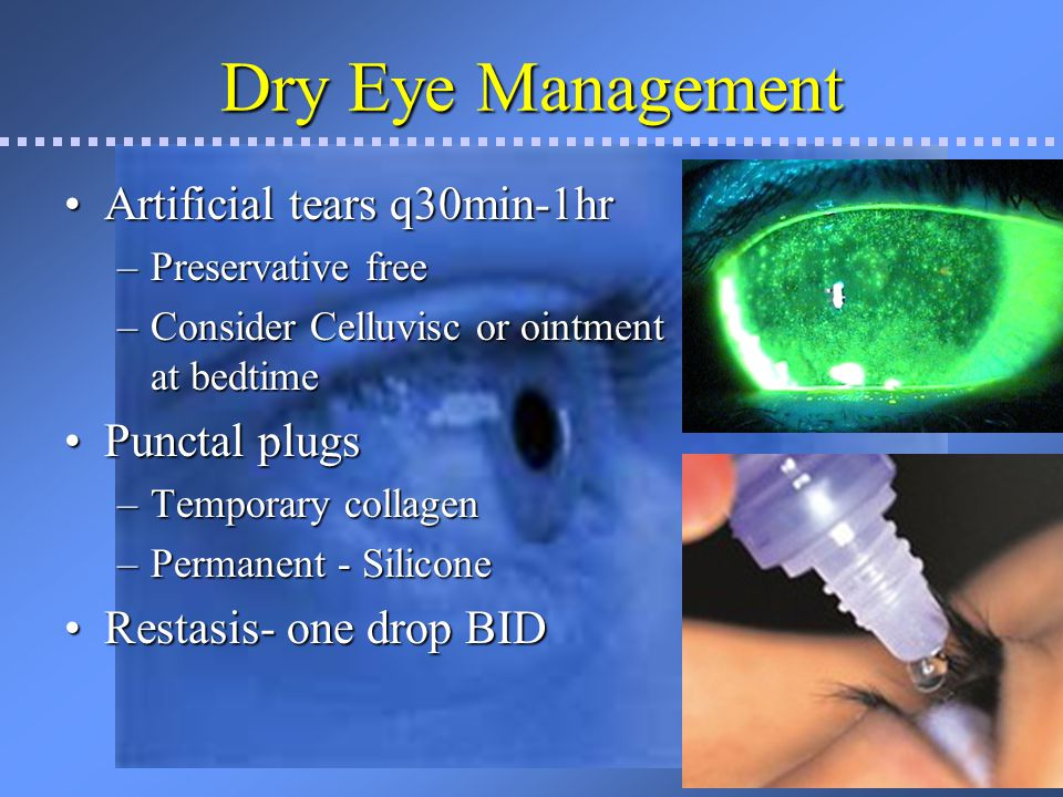 Dry Eye Management Artificial tears q30min-1hr Punctal plugs