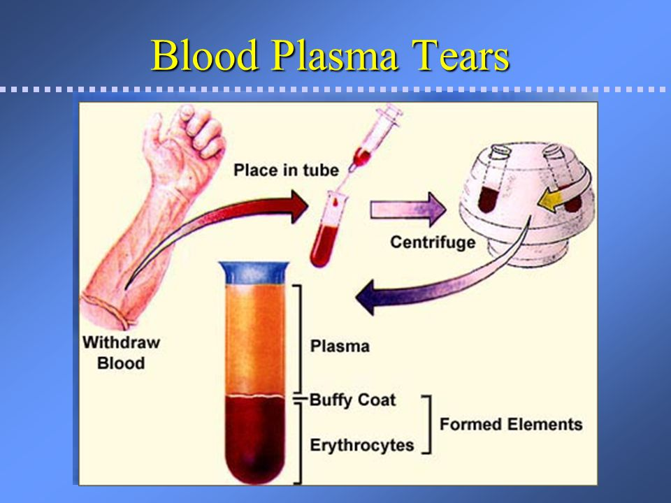 Blood Plasma Tears