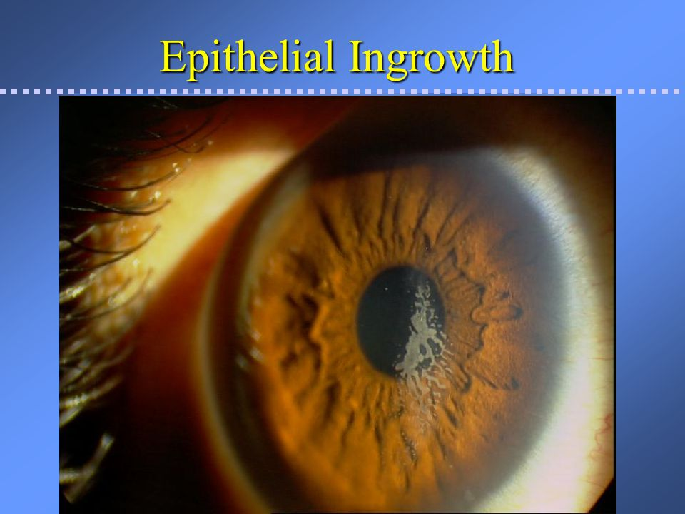 Epithelial Ingrowth