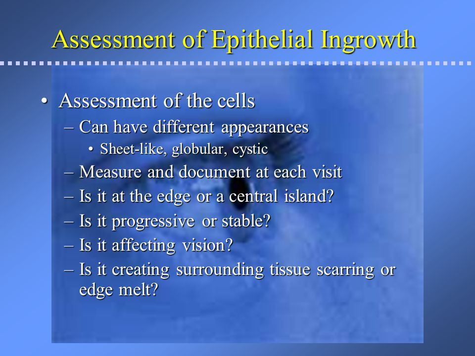 Assessment of Epithelial Ingrowth
