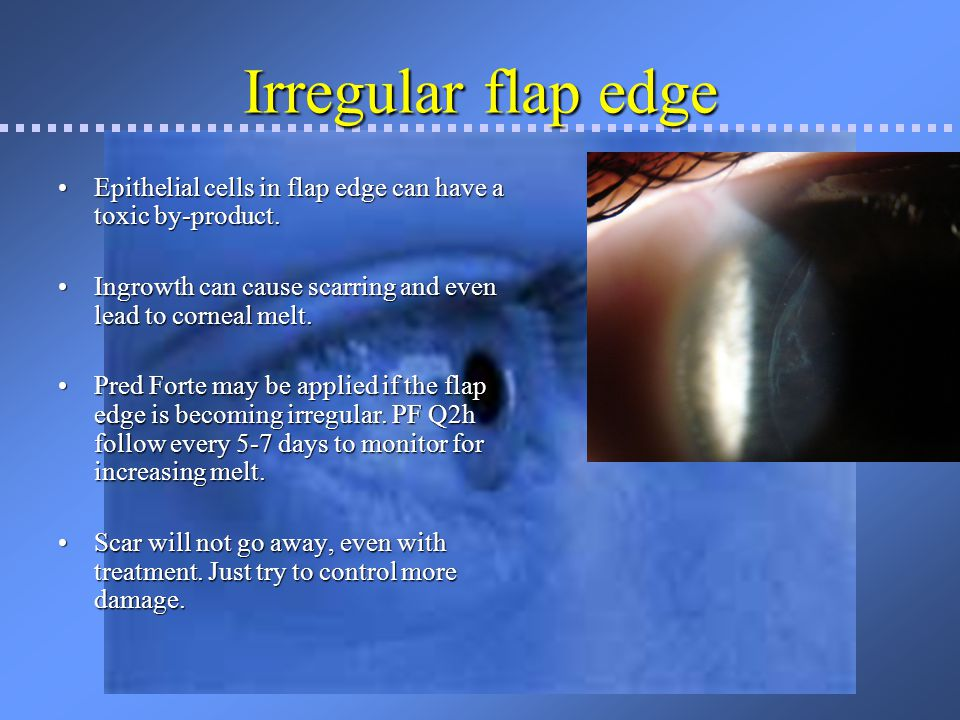 Irregular flap edge Epithelial cells in flap edge can have a toxic by-product. Ingrowth can cause scarring and even lead to corneal melt.